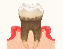 一般歯科2
